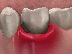 Десна отходит от зуба
