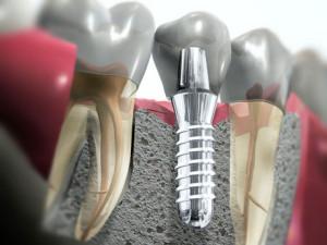 Имплантация зубов за и против