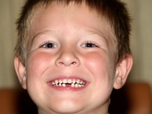 Какие зубы меняются у детей