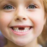 Как вырывают молочные зубы