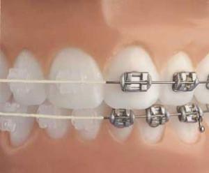 Как исправить кривые зубы