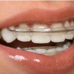 Пластины для выравнивания зубов