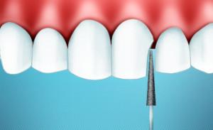 Сепарация зубов