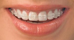 Скобки на зубы