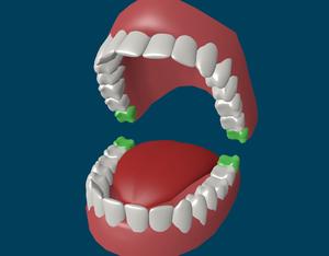 Сколько зубов мудрости у человека