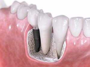 Сколько стоит имплантация одного зуба