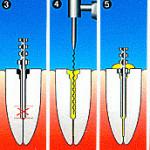 Технология наращивания зубов