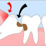 Удаление восьмого зуба