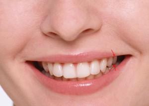 Что делать, если треснул зуб
