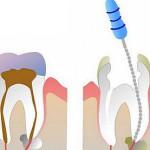 Как удаляют нерв из зуба