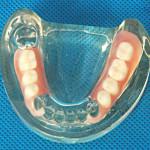 Мягкие протезы зубов