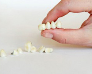 Как выбрать зубные протезы