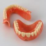 Чем склеить зубной протез