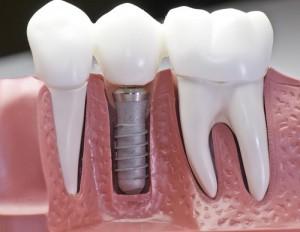 Какие зубные импланты лучше