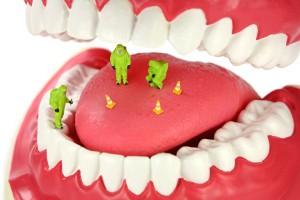 ацетоновый запах изо рта у взрослого