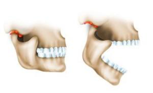 Воспаление сустава челюсти