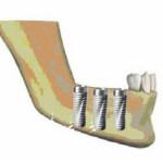 Наращивание костной ткани в стоматологии