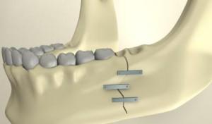 Перелом челюсти и  последствия