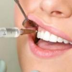 Ультракаин в стоматологии