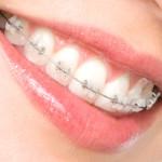 Снять брекеты – значит повредить эмаль